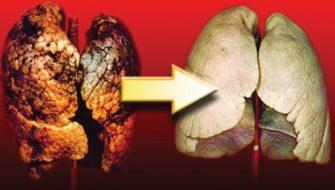 Opt alimente care curata plamanii. Iata cum poti scapa de toxine