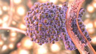 Alimentul care raspandeste cancerul in tot corpul. Renunta la el cat mai rapid