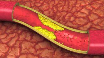 Alimentele care iti distrug organismul in doar 9 zile.Ingusteaza arterele si incetinesc metabolismul