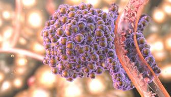 Alimentul care raspandeste cancerul in tot corpul. Il ai sigur in casa. Renunta la el cat mai rapid
