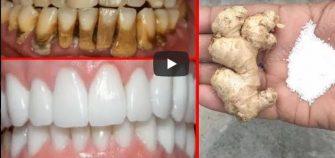 VIDEO – Amestecul care iti albeste dintii intr-un timp foarte scurt – Cum se prepara